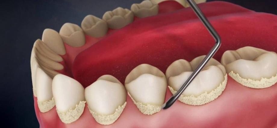 Как образуется зубной камень